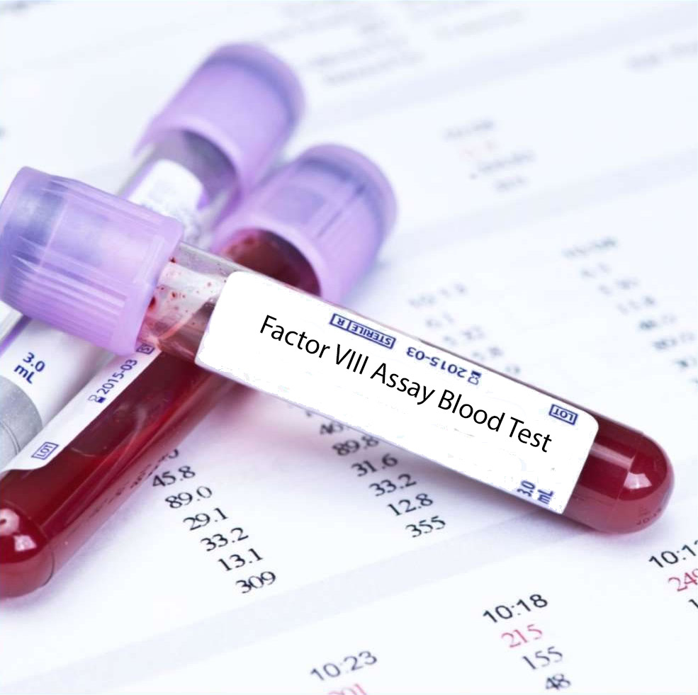 Avail 15% Off on Factor VIII Test at Global Health Diagnostics & Specialists Center