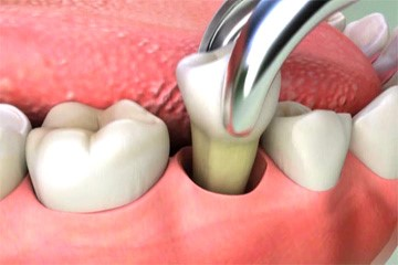 Get 15% Off on Wisdom Teeth Removal Test at 32 Pearl Dental Clinic
