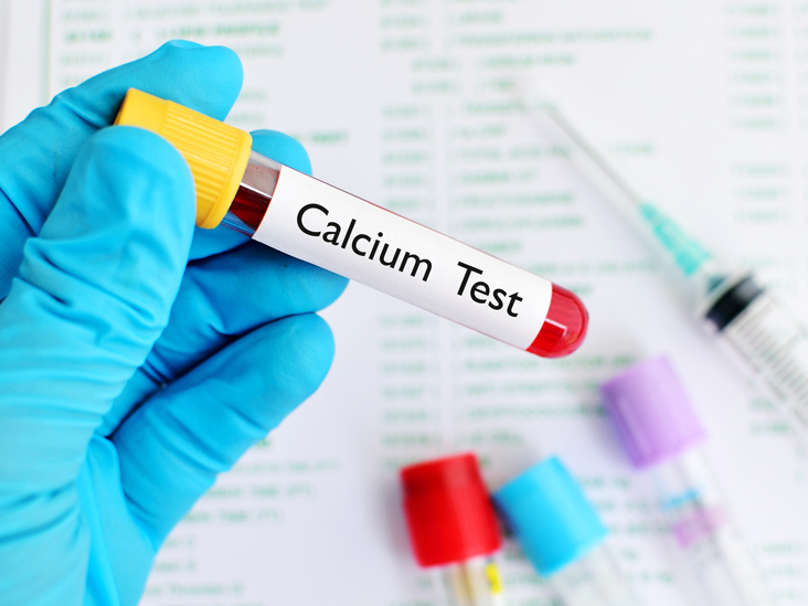 Avail 10% Off on Calcium Test at Spandana Diagnostics Laboratory