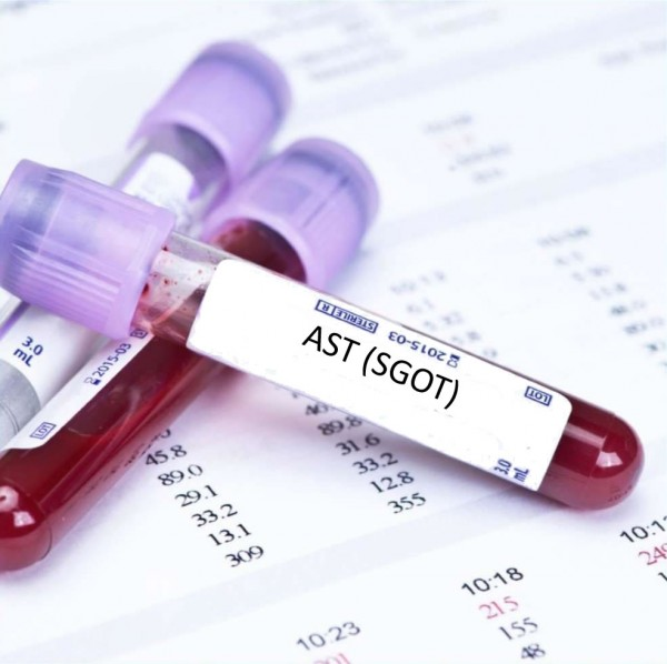 Flat 15% Off on Aspartate Aminotransferase (AST/SGOT) Test at Global Health Diagnostics & Specialists Center