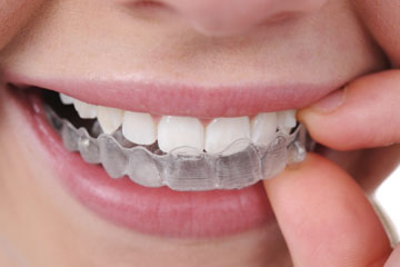 Get 15% Off on Invisalign Braces Free Correction Test at Pearl Dental Clinic