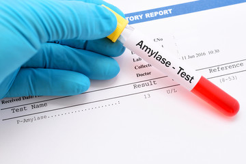 Get 10% Off on Amylase Test at Spandana Diagnostics Laboratory