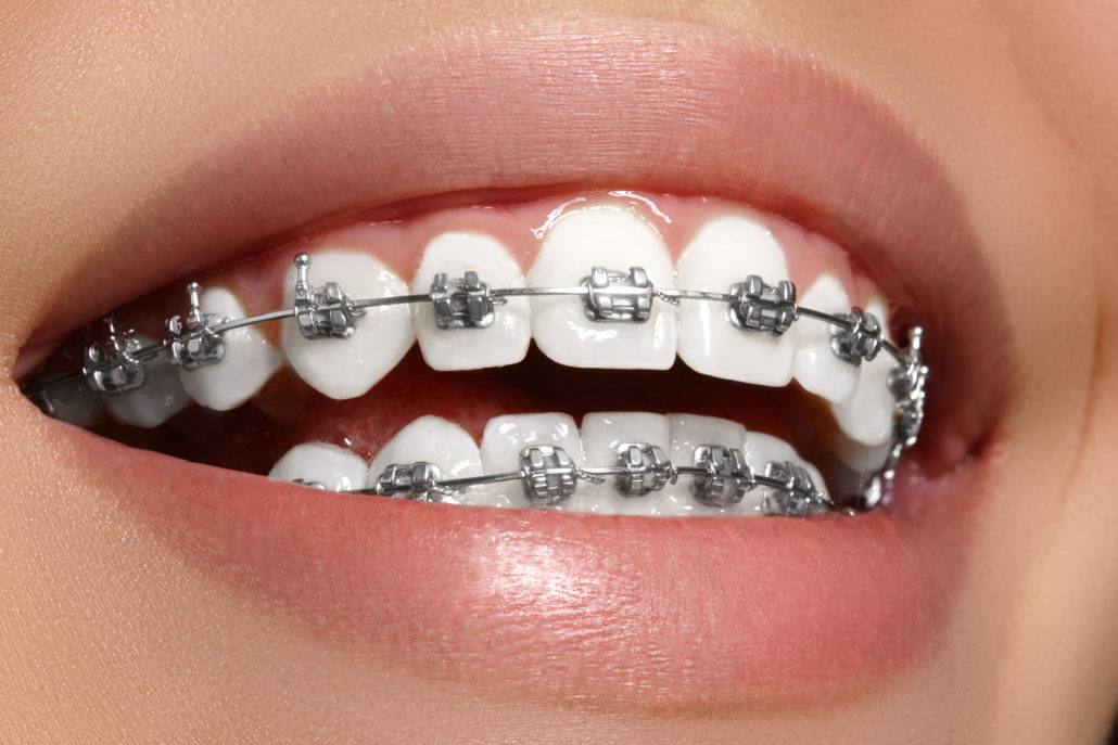 Flat 4000/- Off on Metal Braces by Impla Dental Care for Medikoe users