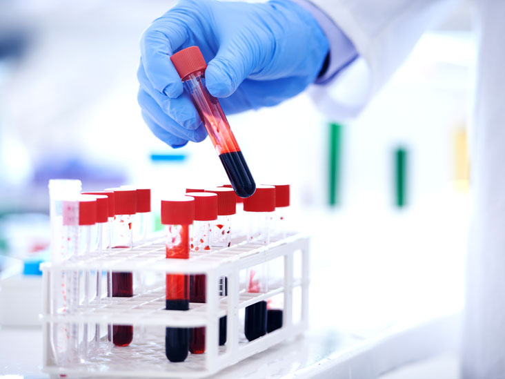 Avail 10% Off on Total Protein Test at Sumukh Labs & Diagnostics