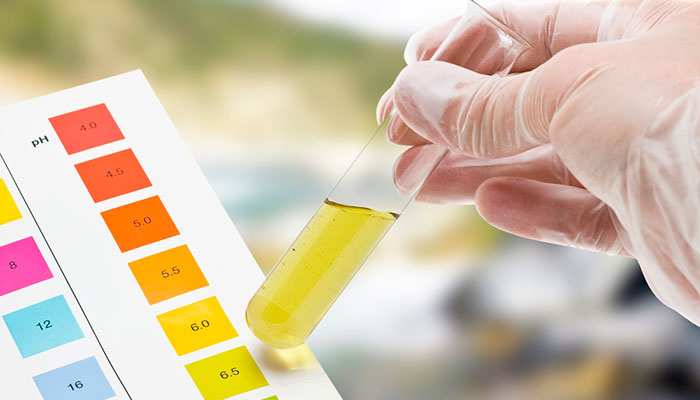 Flat 10% Off on Urine Routine Test at Spandana Diagnostic 