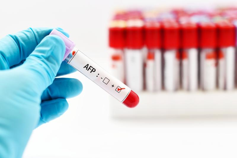 Get 15% Off on Alpha Feto Protein (AFP) Test at Shree Maruthi Diagnostics & Specialists Center