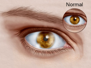 What is Corneal Dystrophies of the eye?