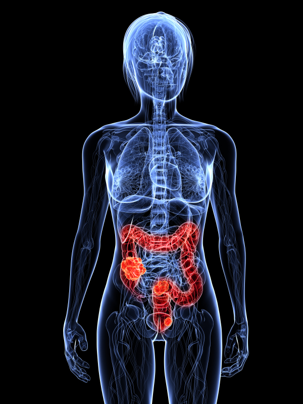 Colon Cancer and its Risk Factors