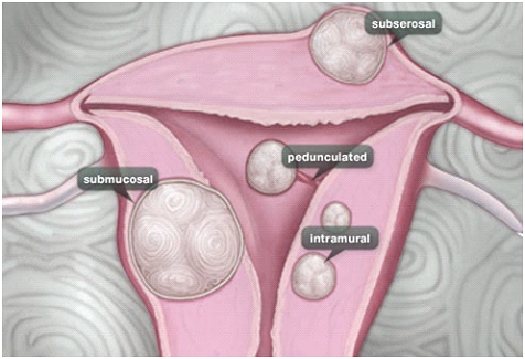 Fibroids – Causes and Treatment options By Dr. Shantala Thuppanna