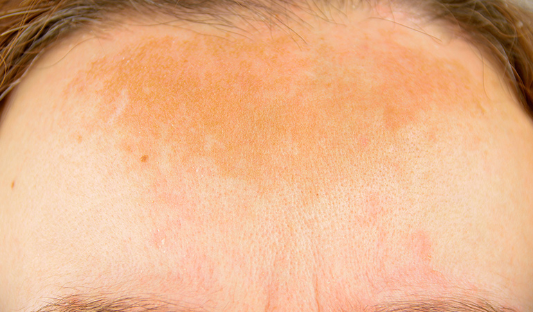 Itchy Forehead: What is it? How to get rid of them?
