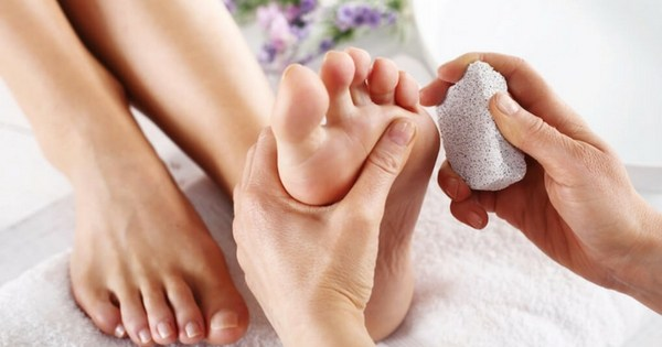 How to Remove Calluses?