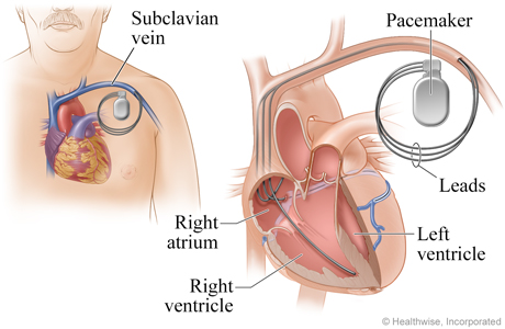 Treatment of ARRHYTHMIA-(problem in either the rate or rhythm of the heart beat )