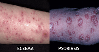 Eczema or Psoriasis, Know the Difference