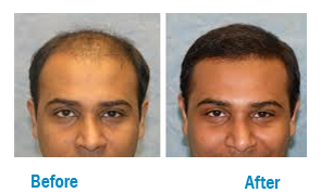 HAIR -TRANSPLANT-Know more