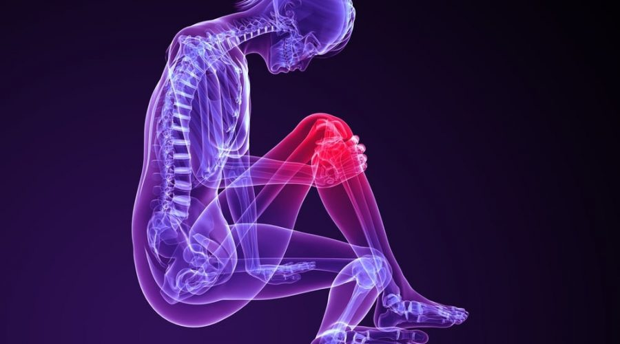 What is an ACL tear?