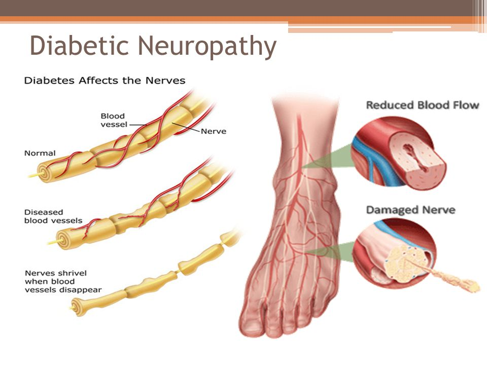 How are diabetic neuropathies diagnosed and prevented