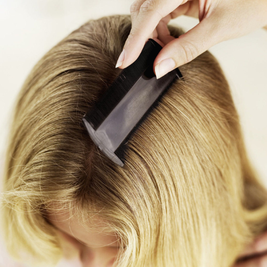 REMEDIES TO GET RID OF LICE