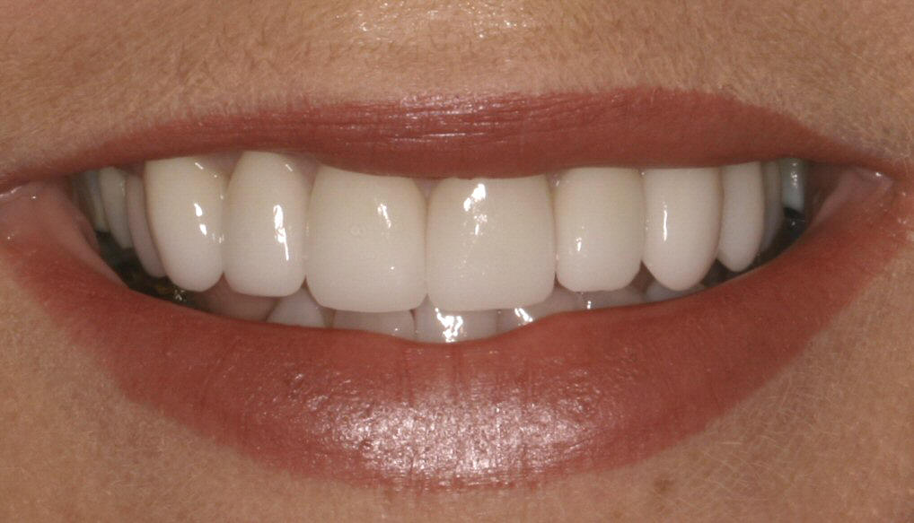 What can be done about old, unattractive, or discoloured fillings?