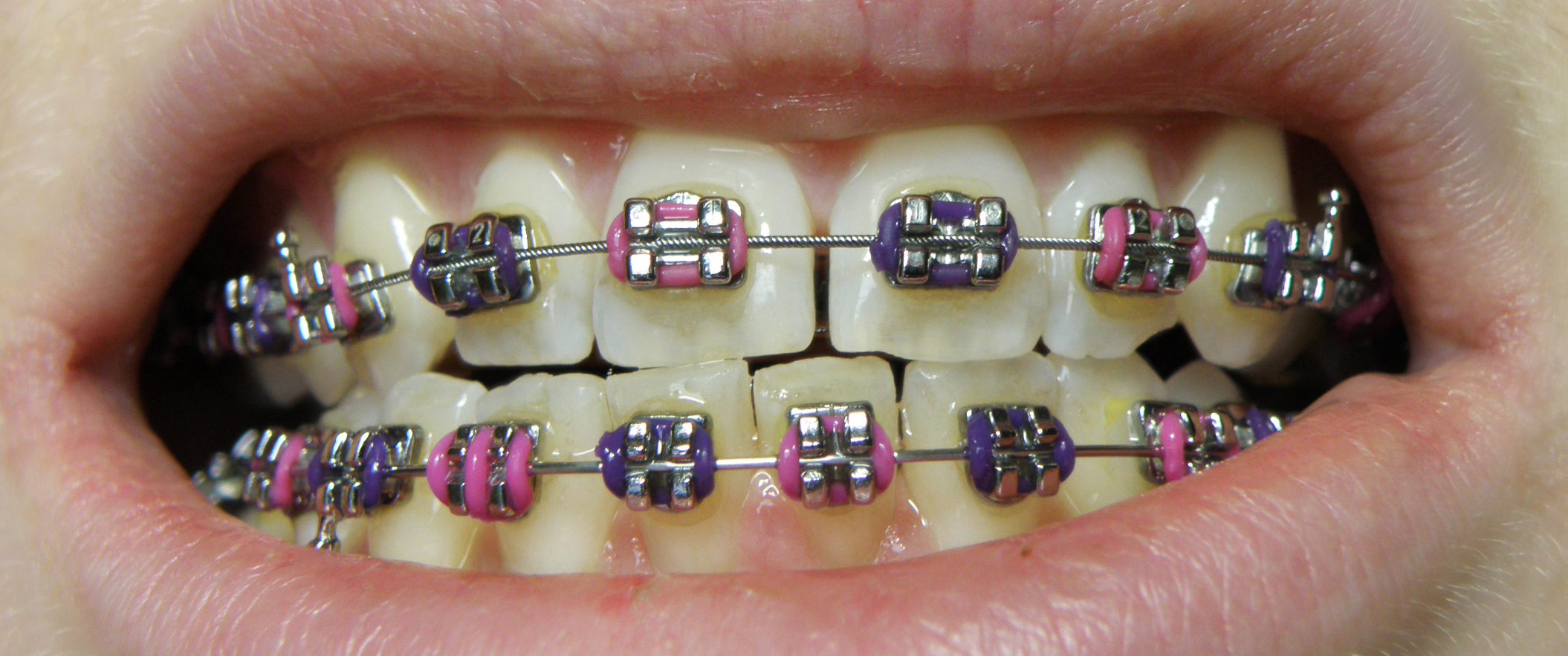What are Dental Braces and its Types?