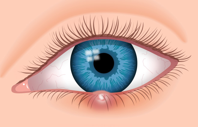 What are Eye Styes?