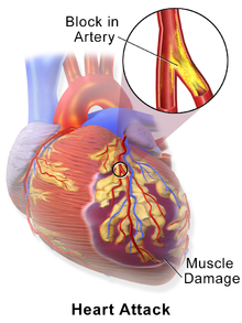Causes of MYOCARDIAL INFARCTION-Heart attack, technically known as myocardial infarction