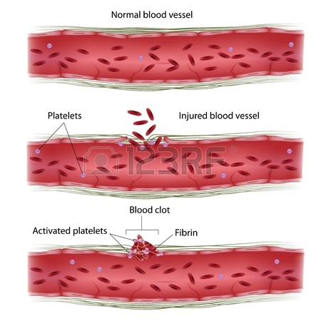 Coagulation and related disorders