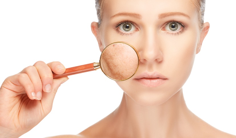 PIGMENTATION – A Big Problem for Youngsters