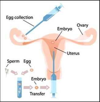 IVF - Precautions post Embryo Transfer