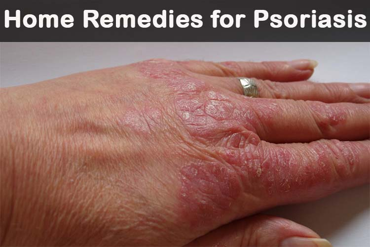 5 BEST HOME REMEDY IN PSORIASIS THAT YOU SHOULD TRY
