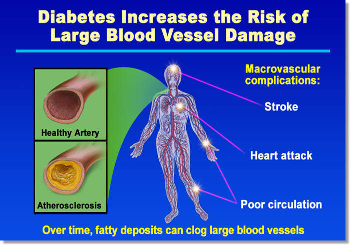 What types of heart and blood vessel disease occur in people with diabetes?