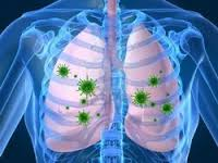 Lung Infection – Treatment & Prevention