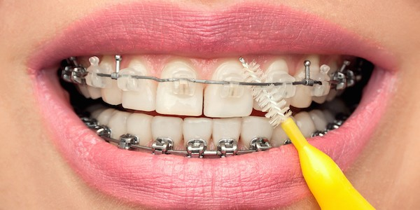 Braces and oral hygiene