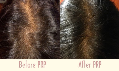 IS PRP THE SOLUTION TO HAIRLOSS?