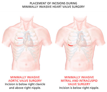 What is Minimally Invasive Cardiac Surgery- keyhole heart surgery?