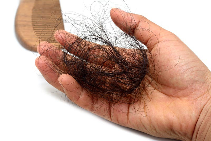 Did you know scalp problems cause hair loss?