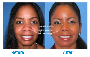 Know more about NOSE SURGERY (RHINOPLASTY)