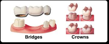 What Are Dental Crowns And Tooth Bridges?