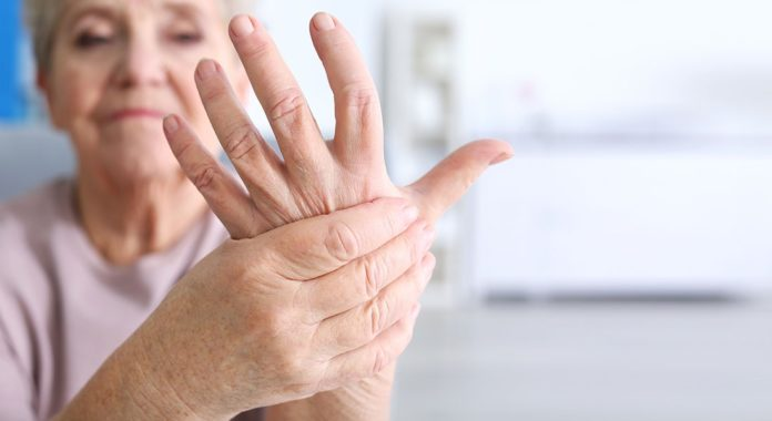 8 Facts about Arthritis you MUST KNOW!