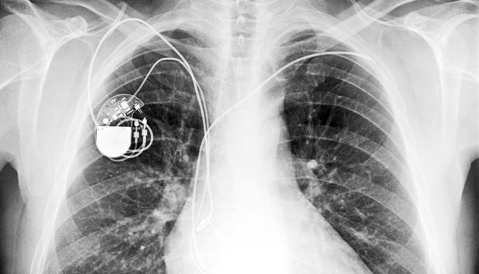 How does a pacemaker help?