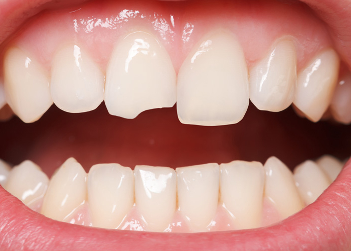 What is Cracked Tooth Syndrome?