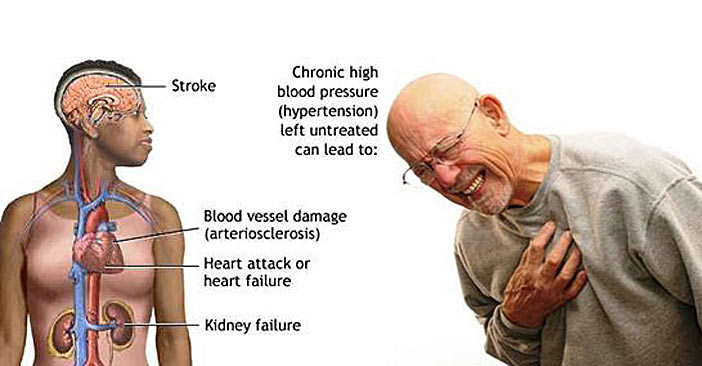 Symptoms of hardening and narrowing of the arteries-ATHEROSCLEROSIS