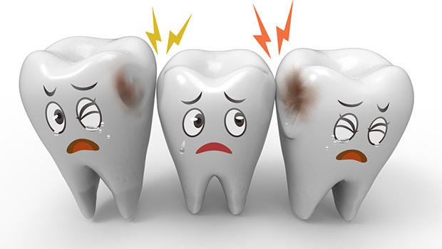 UNDERSTANDING CAVITIES- CAUSES AND PREVENTION