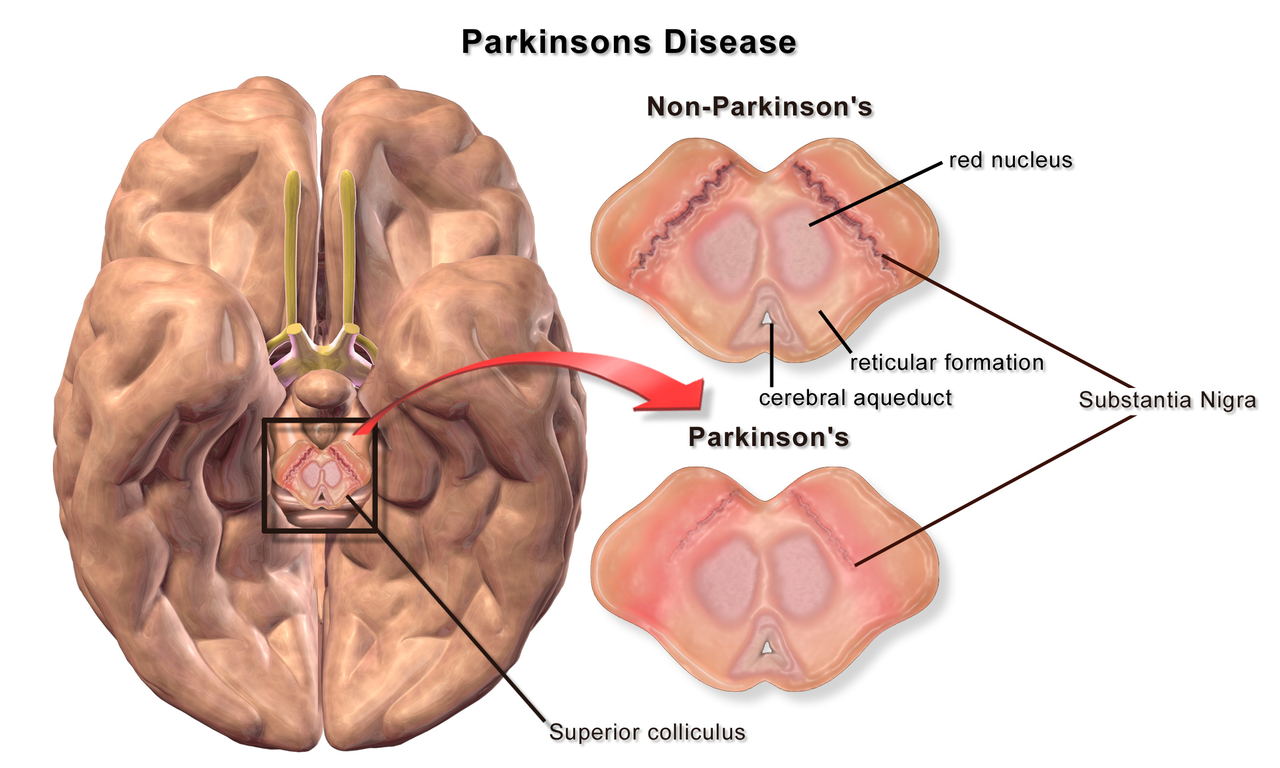 Learn More About Parkinson's