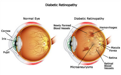 What can I do about diabetes retina problems