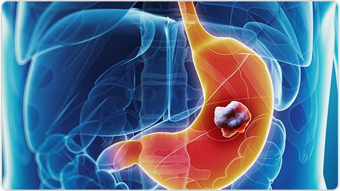Stomach Cancer: Causes and Treatment
