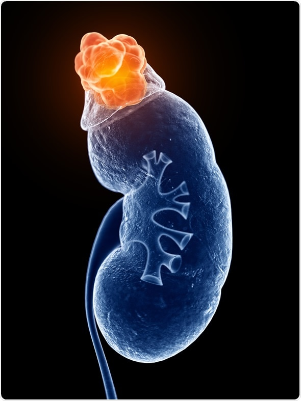 What Is Adrenal Cortical Carcinoma?