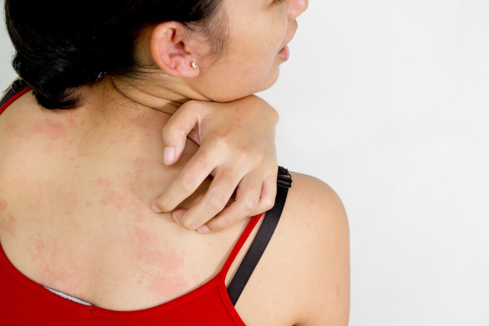 All You Need To Know About Skin Allergy