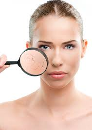 Homeopathy for Dryness of the skin