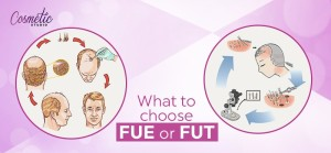 What To Choose FUE Or FUT? Comparing Hair Transplantation Methods
