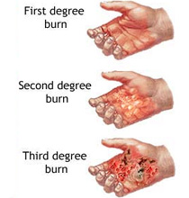 Homeopathic remedies for burns
